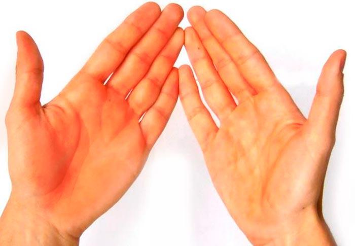 красные руки