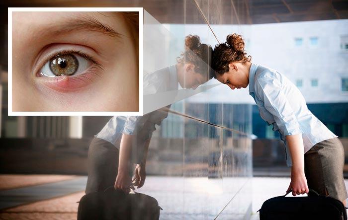 ячмень на левом глазу у женщины